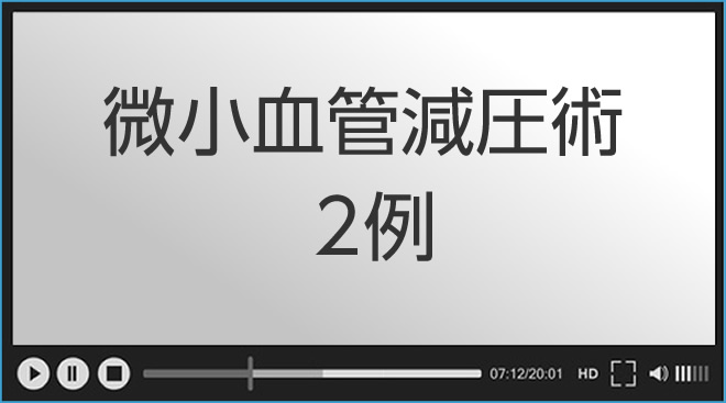 動画 微小血管減圧術2例(顔面けいれん、三叉神経痛)